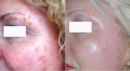 Before & after pictures Peelings/Fotos antes & depois Peelings