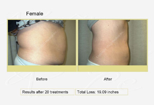 Clinical Photos taken before and after treatments with the Diode Laser for fat removal