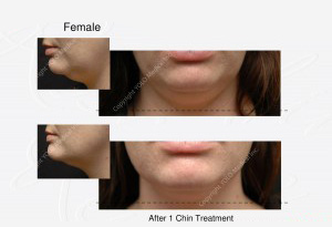 Clinical Photos taken before and after treatments