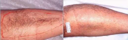 Laser Hair Removal leg/ Depilação Laser perna