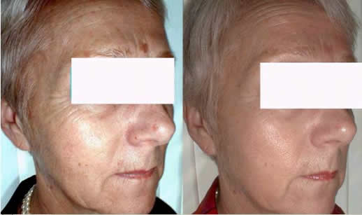 Before & After pics Anti-Aging/ Fotos antes e depois Anti-Aging
