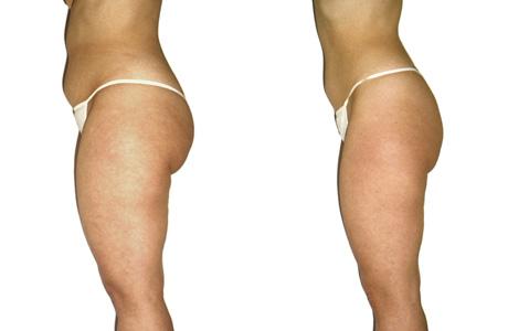 Before & after pictures LPG Lipomassage/Fotos antes & depois LPG Lipomassage
